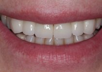 After - Springburndental