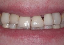 Before - Springburndental